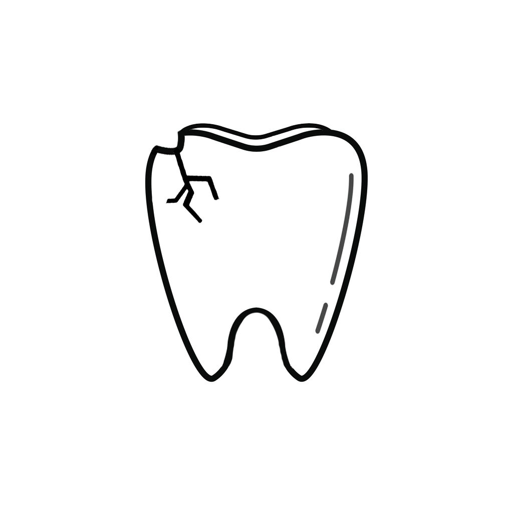 Chantilly VA Dentist | I Chipped a Tooth! What Can I Do?